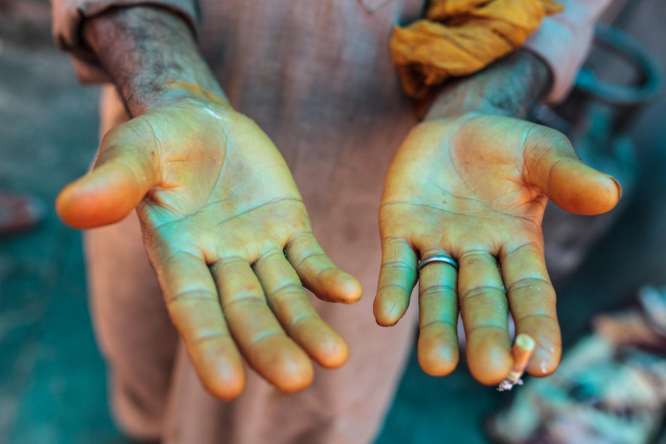 1. Gullam Rosul, chef of the New Zum Zum Hotel, prepares kebabs for customers. / 2. Rosul displays his hands, stained yellow from cooking with curry.