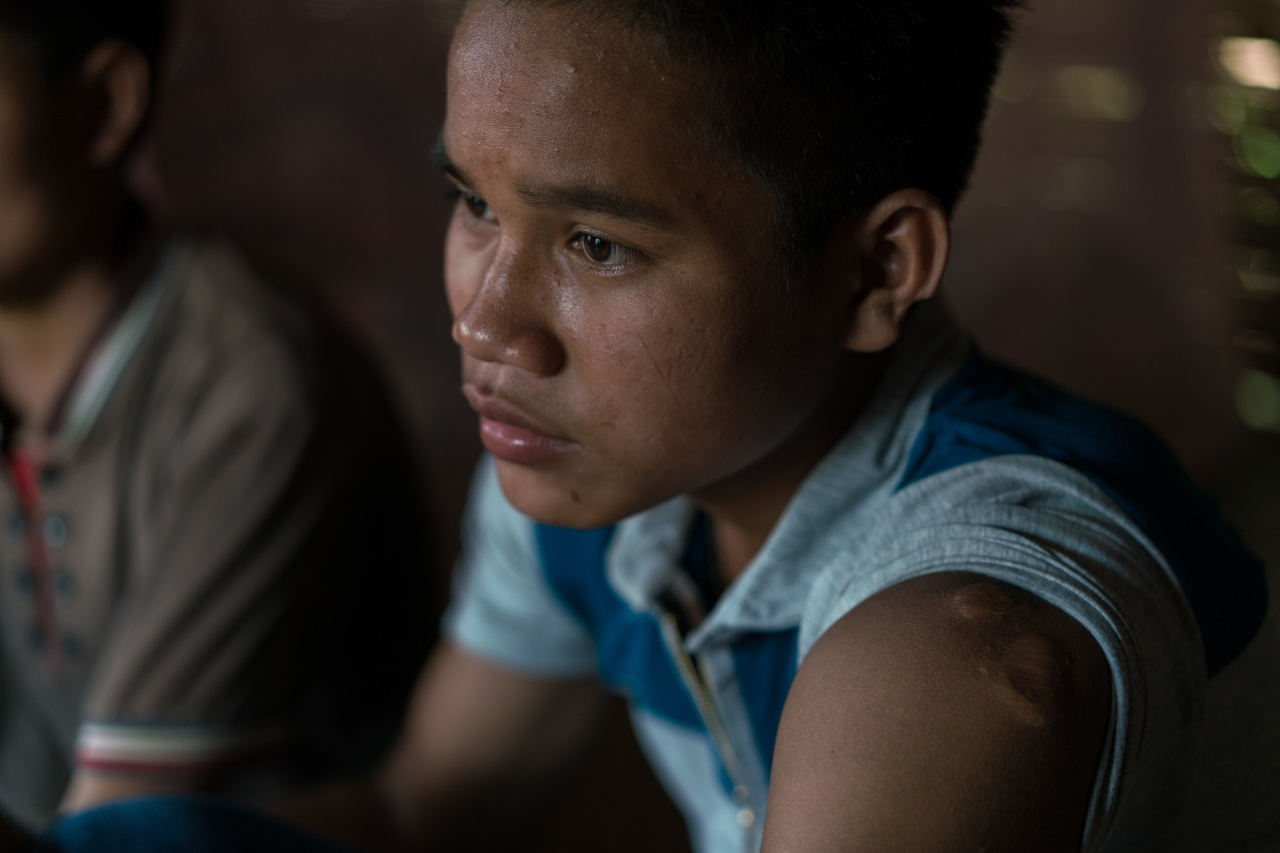 Ty shows the scars on his ear and arm caused by the explosion of the UXO.